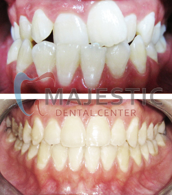 Majestic Dental Center, Dental Clinic Qatar, Dental Doha - Our Services